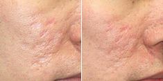 Mesotherapy (face, neck revitalization) - Photo before - Brandeis Clinic by Lucie Kalinová