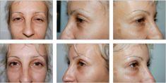 Eyelid surgery (Blepharoplasty) - Photo before