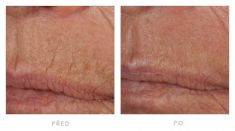 Fotorejuvenation  - Photo before - YES VISAGE Aesthetic medicine and plastic surgery clinic