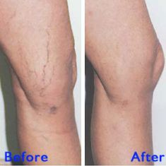 Spider veins laser removal (redness, birh marks) - Photo before - Azim Jahangir Khan M.D.