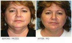 Laser Liposuction - CoolLipo - Photo before