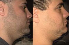 Laser hair removal - Photo before - Mediestetik, skupina klinik