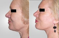 Asklepion – Laser and Aesthetic medicine - Photo before - Asklepion – Laser and Aesthetic medicine