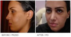 PRP – Plasma therapy - Photo before - Mandala Beauty Clinic