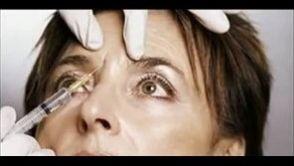 Envejecimiento Signos Facial