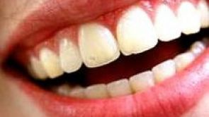 Gingival Smile or Gummy smile correction