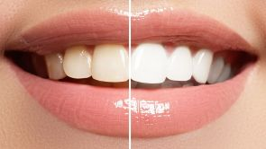 How to get a bright white smile