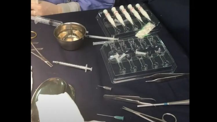 Hair transplant in FUE technique eyelashes