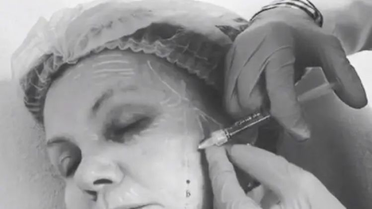 Redermalization to increase skin's regenerative potential