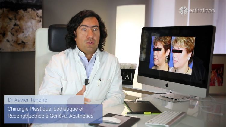 Different approaches how to perform facelift