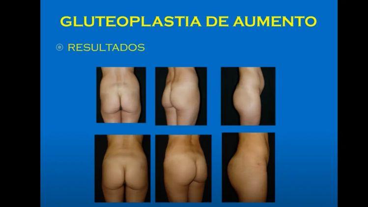 Gluteoplasty by Dr. Ignacio P. Tapia V. Clínica Vaser