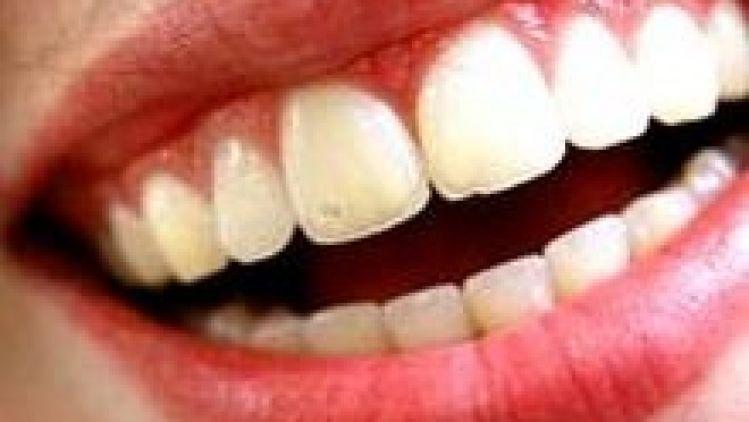 Gingival Smile or Gummy smile correction