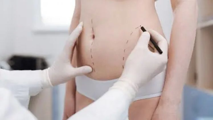 Mommy makeover: the new trend in plastic surgery